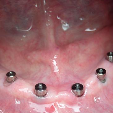 Formation en implantologie orale